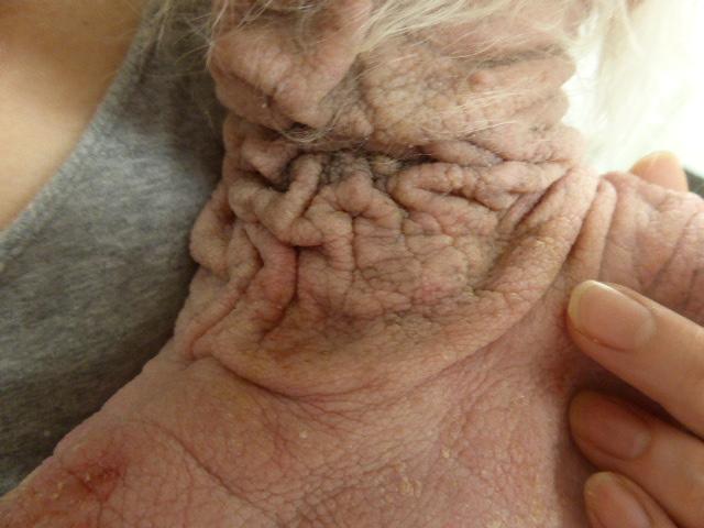 マラセチア皮膚炎